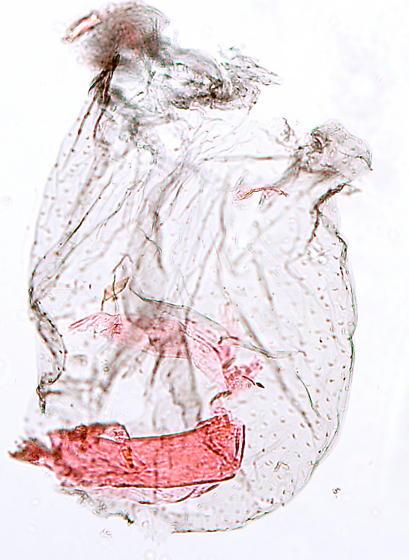 Tineoidae - Eudarcia eunitariaeella - female