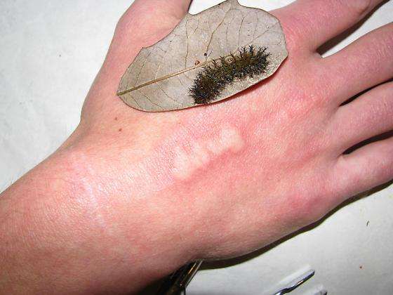 Buckmoth sting - 10 minutes later - Hemileuca maia