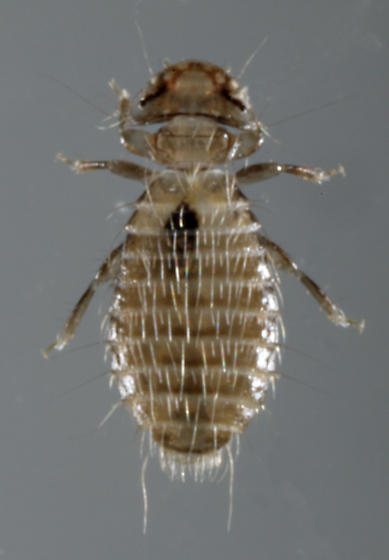 louse hunting Adult head lice or their eggs (nits) are found in the hair and are most often found  behind the ears and at the base of the neck head lice usually lay their eggs on.
