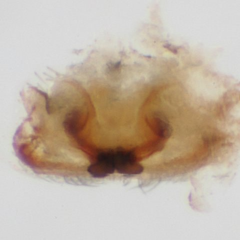 Epigynum, dorsal view (dissected; BG:399571) - Emblyna hentzi - female