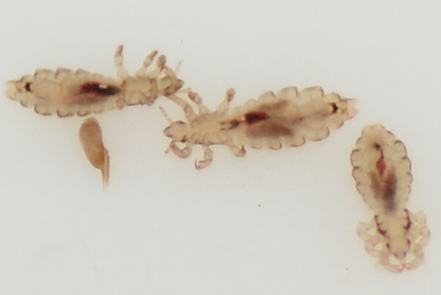 Pediculus sp., Head lice - Pediculus