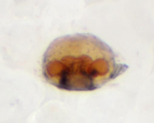 Epigyne, dorsal aspect (dissected), BG:371690 - Souessa spinifera - female