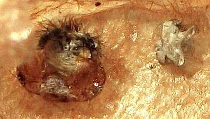 Exuviae - Cladius difformis